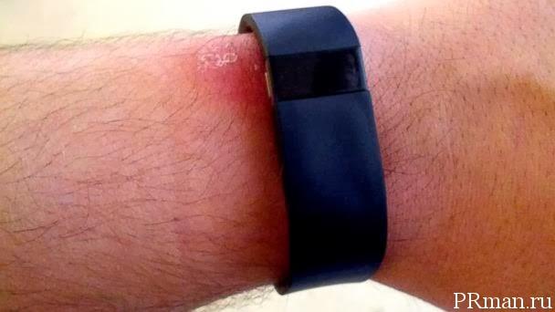 Fitbit Force вызывает аллергию?